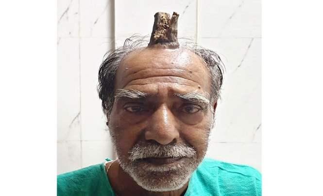 «Дьявольский» рог вырос на лбу пожилого индийца